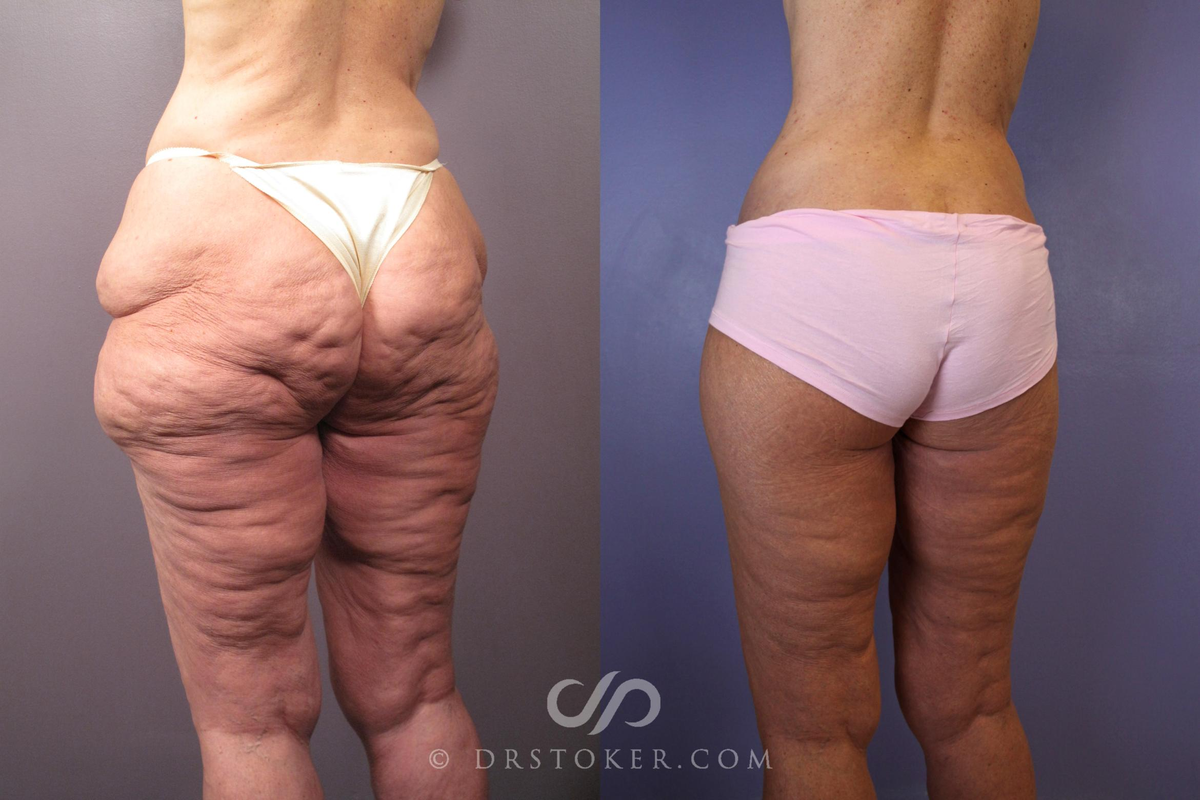 Thigh lift Case 1008 Before & After View #1 | Marina del Rey, CA | Dr. David Stoker