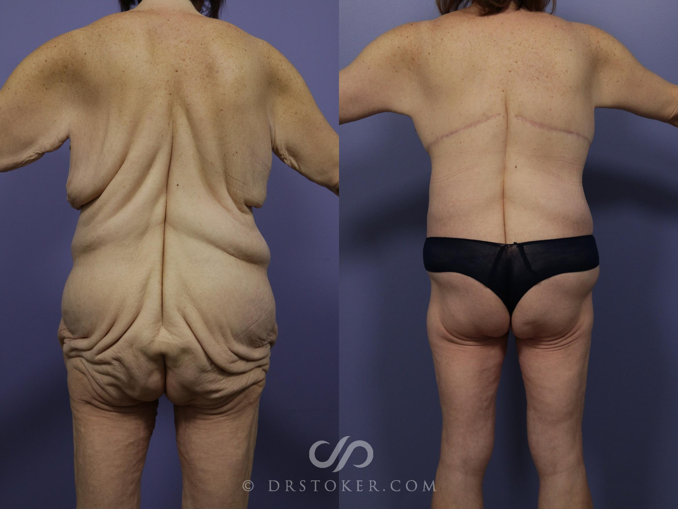 Body Lift Case 1003 Before & After View #1 | Marina del Rey, CA | Dr. David Stoker