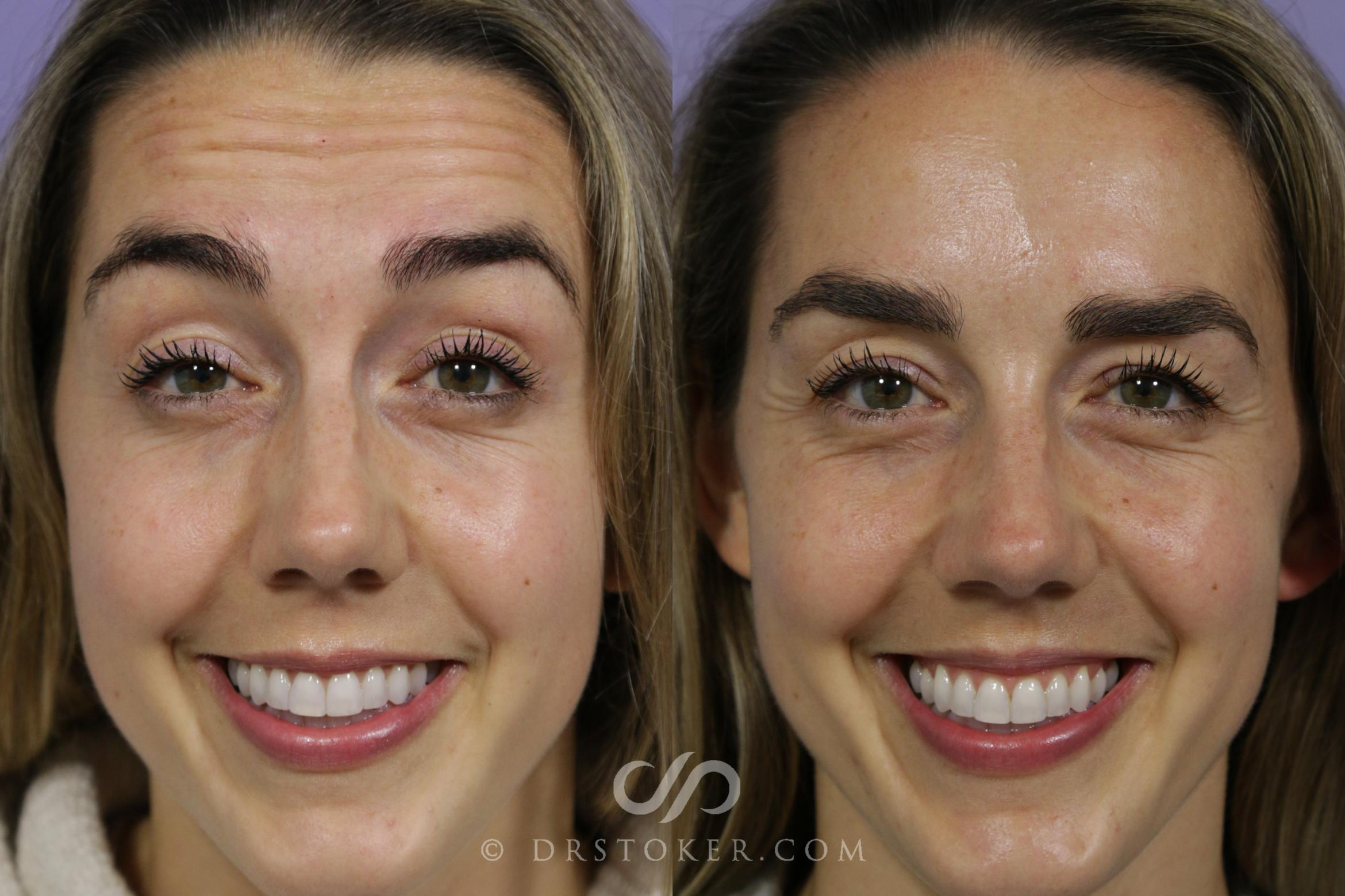 Botox, Dysport, & Jeuveau Case 1583 Before & After View #1 | Marina del Rey, CA | Dr. David Stoker