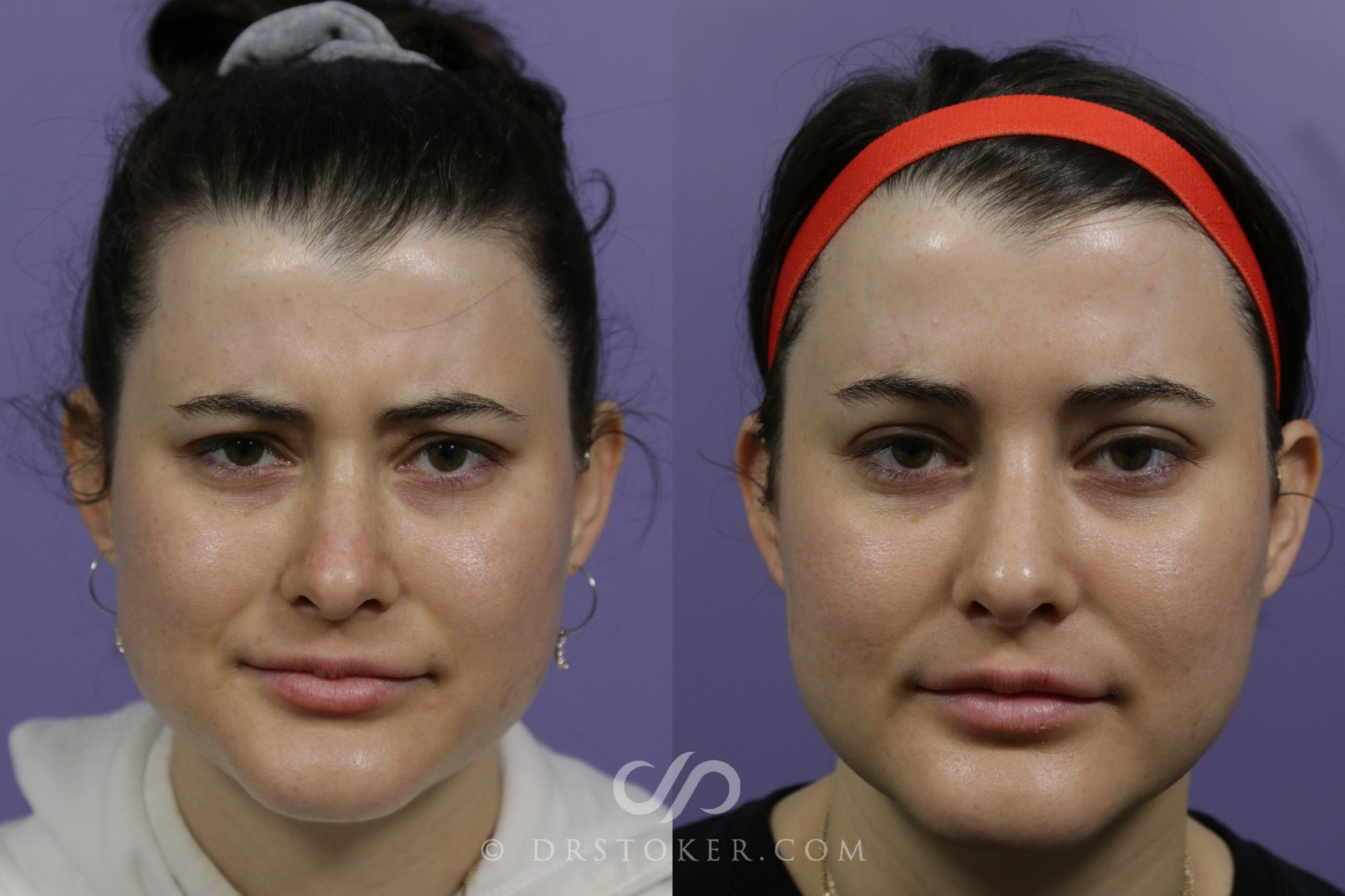 Prejuvenation (Nonsurgical) Case 1603 Before & After View #1 | Marina del Rey, CA | Dr. David Stoker