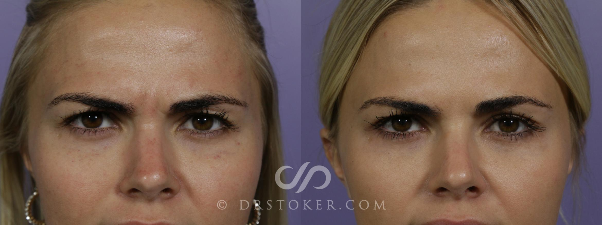 Botox, Dysport, & Jeuveau Case 1616 Before & After View #1 | Marina del Rey, CA | Dr. David Stoker