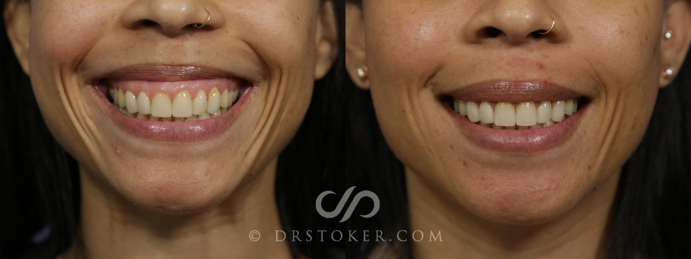 Prejuvenation (Nonsurgical) Case 1620 Before & After View #1 | Marina del Rey, CA | Dr. David Stoker