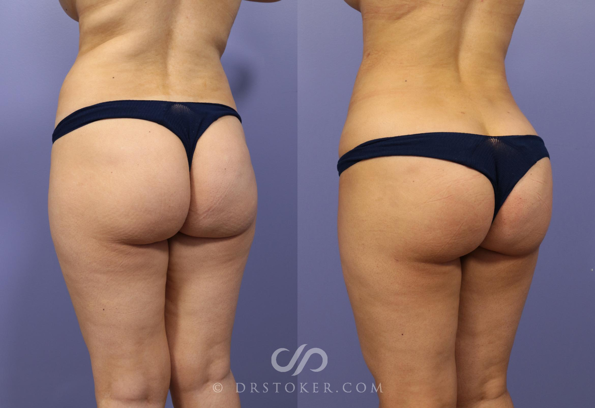Brazilian Butt Lift (Fat Grafts to Buttocks) Case 619 Before & After View #1 | Los Angeles, CA | Dr. David Stoker