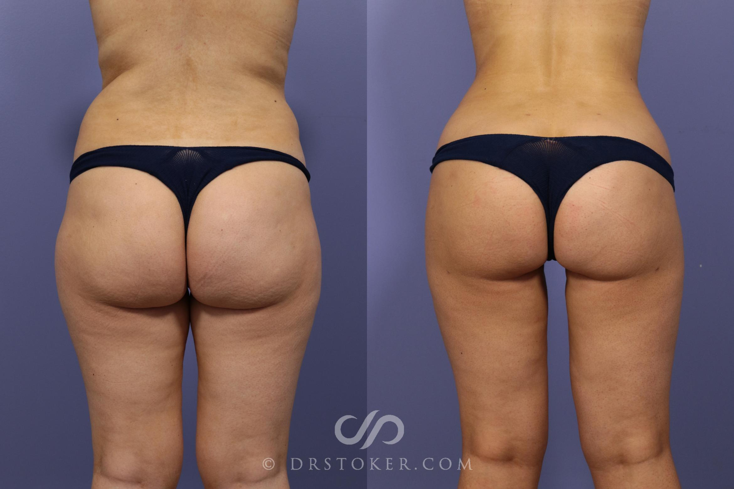 Brazilian Butt Lift (Fat Grafts to Buttocks) Case 620 Before & After View #1 | Los Angeles, CA | Dr. David Stoker