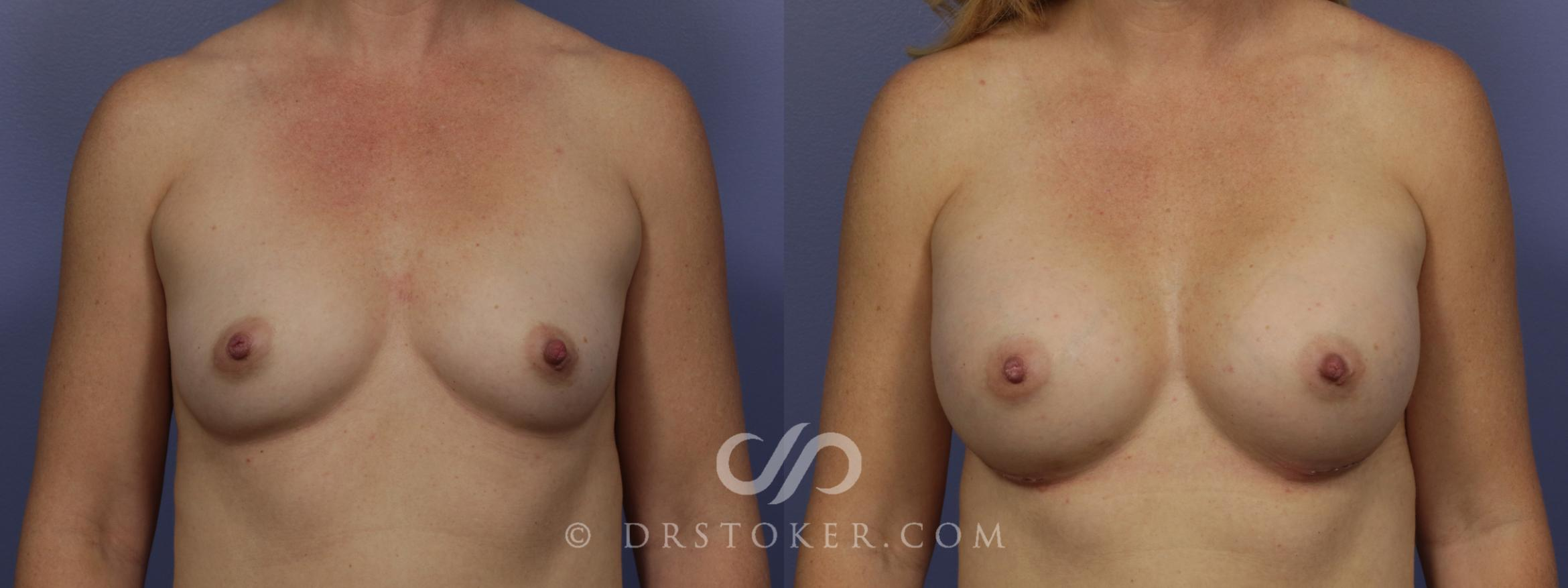 Breast Augmentation Case 1051 Before & After View #1 | Marina del Rey, CA | Dr. David Stoker