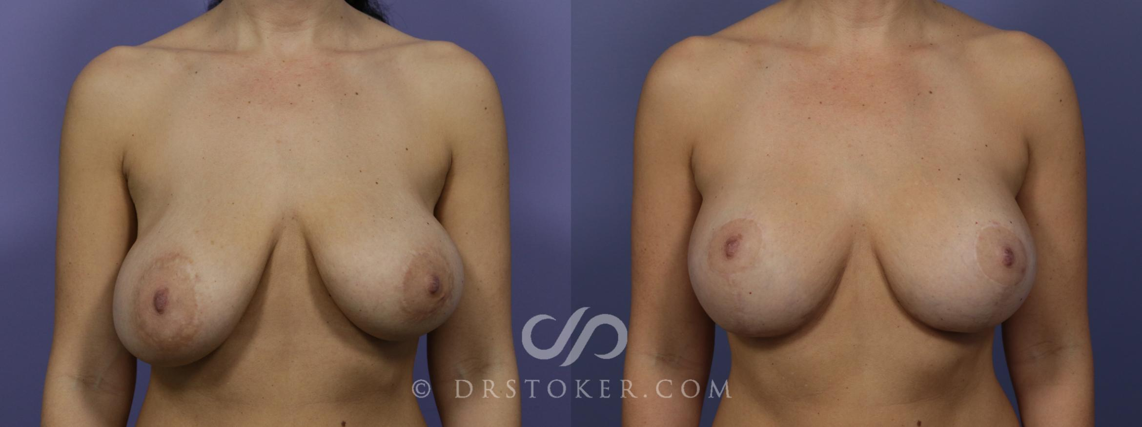 Breast Implant Correction Case 966 Before & After View #1 | Marina del Rey, CA | Dr. David Stoker