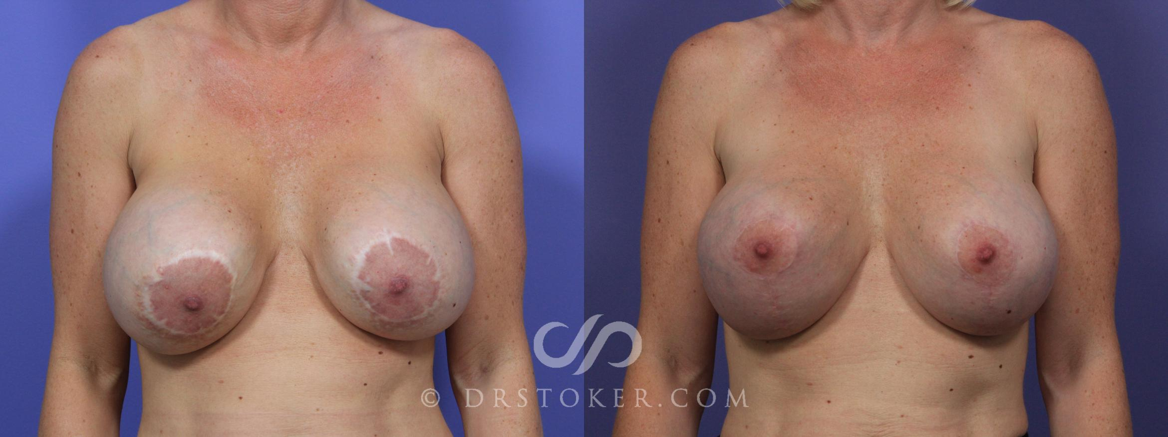 Breast Implant Correction Case 967 Before & After View #1 | Marina del Rey, CA | Dr. David Stoker