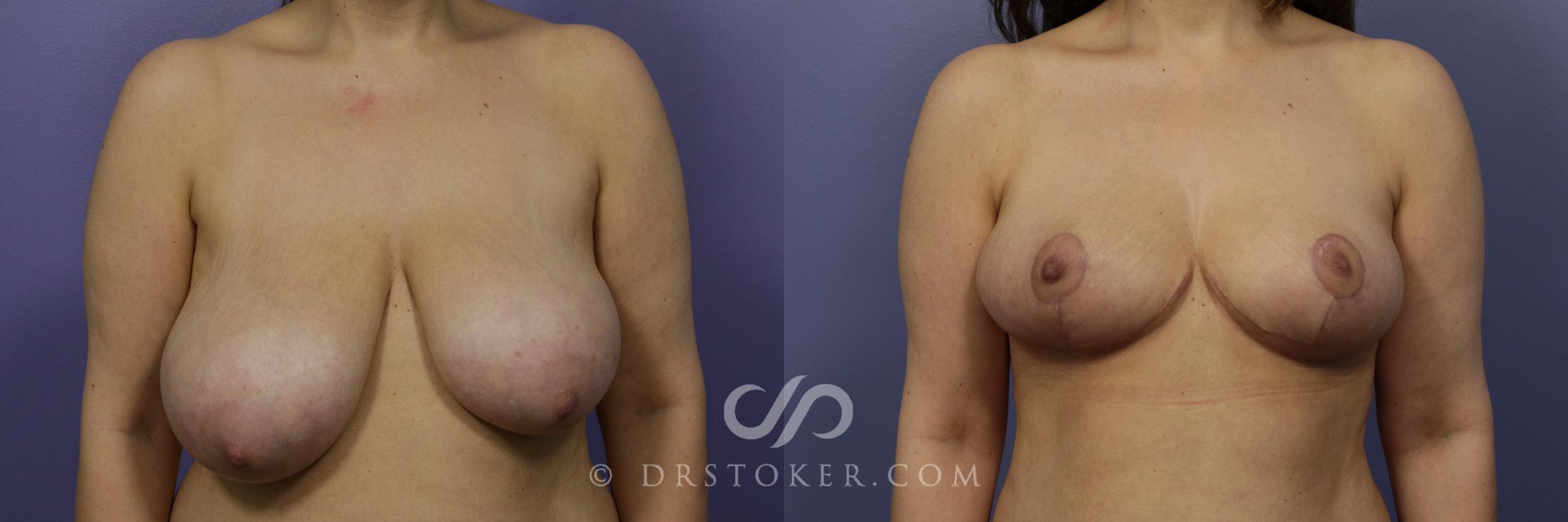 Breast Reduction (for Women) Case 883 Before & After View #1 | Los Angeles, CA | Dr. David Stoker