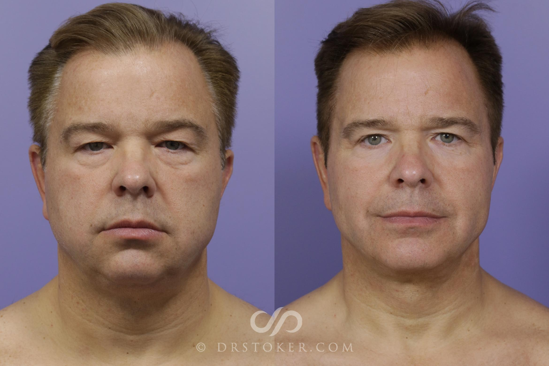 Cheek/Chin Shaping Case 1471 Before & After View #1 | Marina del Rey, CA | Dr. David Stoker