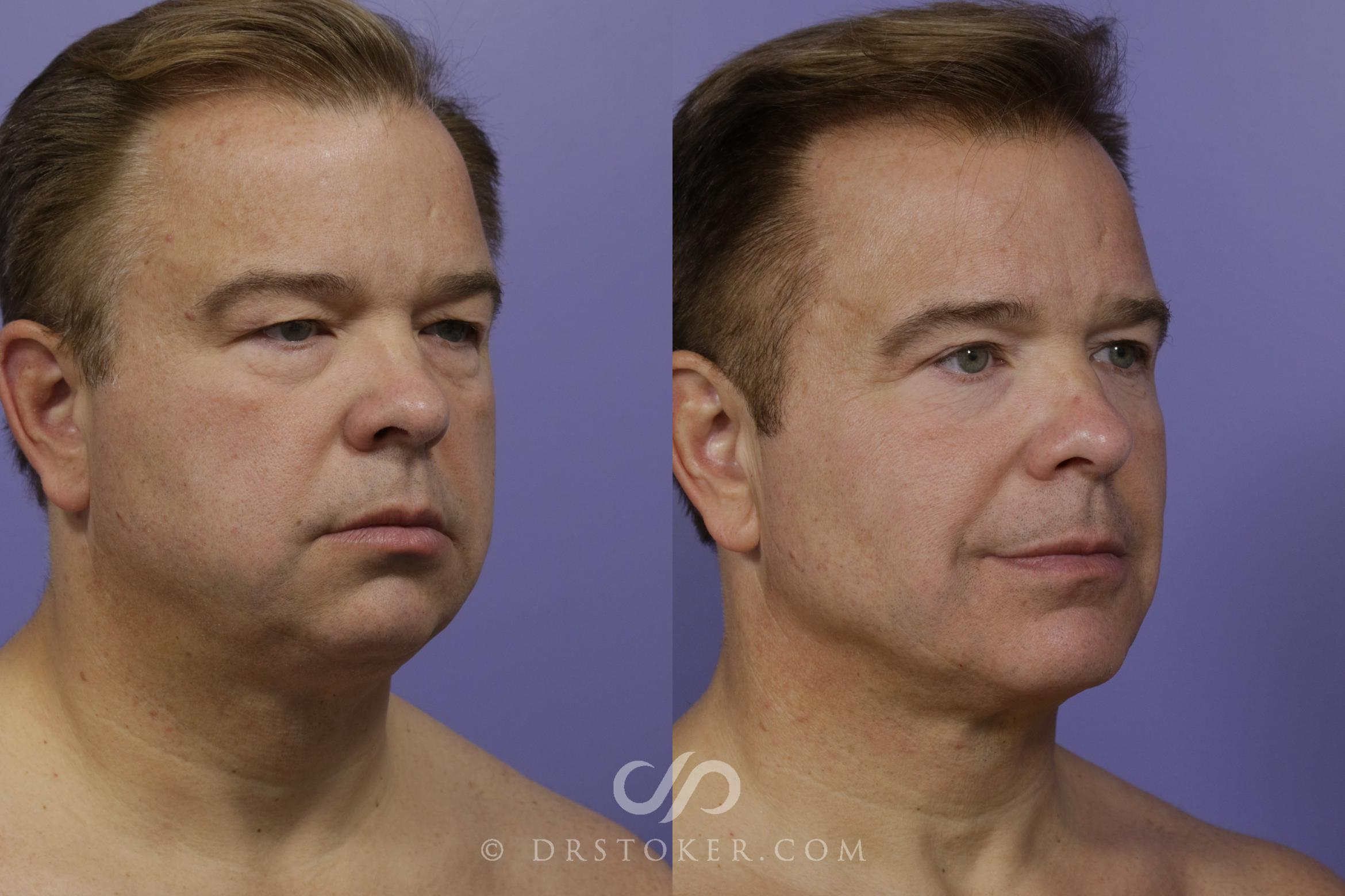 Cheek/Chin Shaping Case 1524 Before & After View #1 | Marina del Rey, CA | Dr. David Stoker