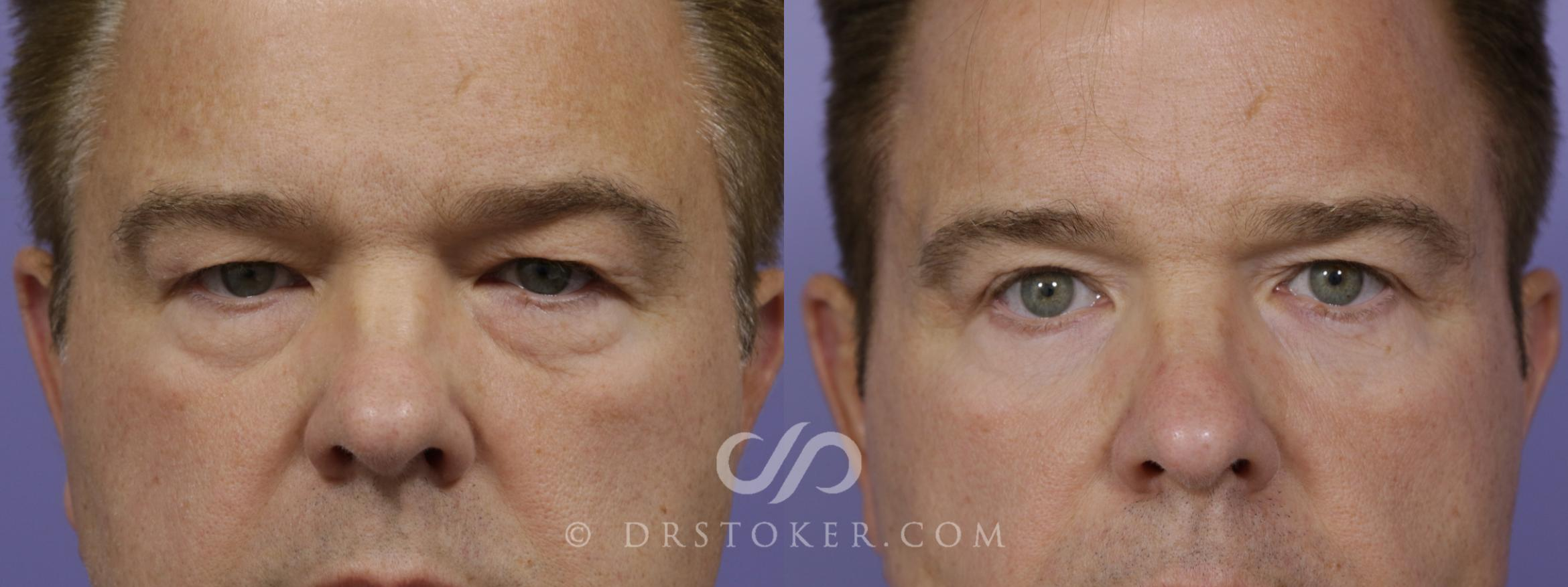 Eyelid Surgery for Men Case 1525 Before & After View #1 | Marina del Rey, CA | Dr. David Stoker