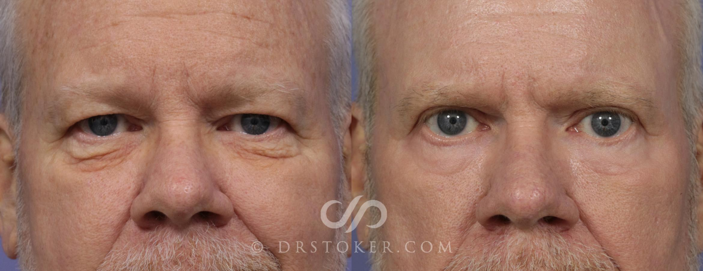 Eyelid Surgery for Men Case 861 Before & After View #1 | Marina del Rey, CA | Dr. David Stoker