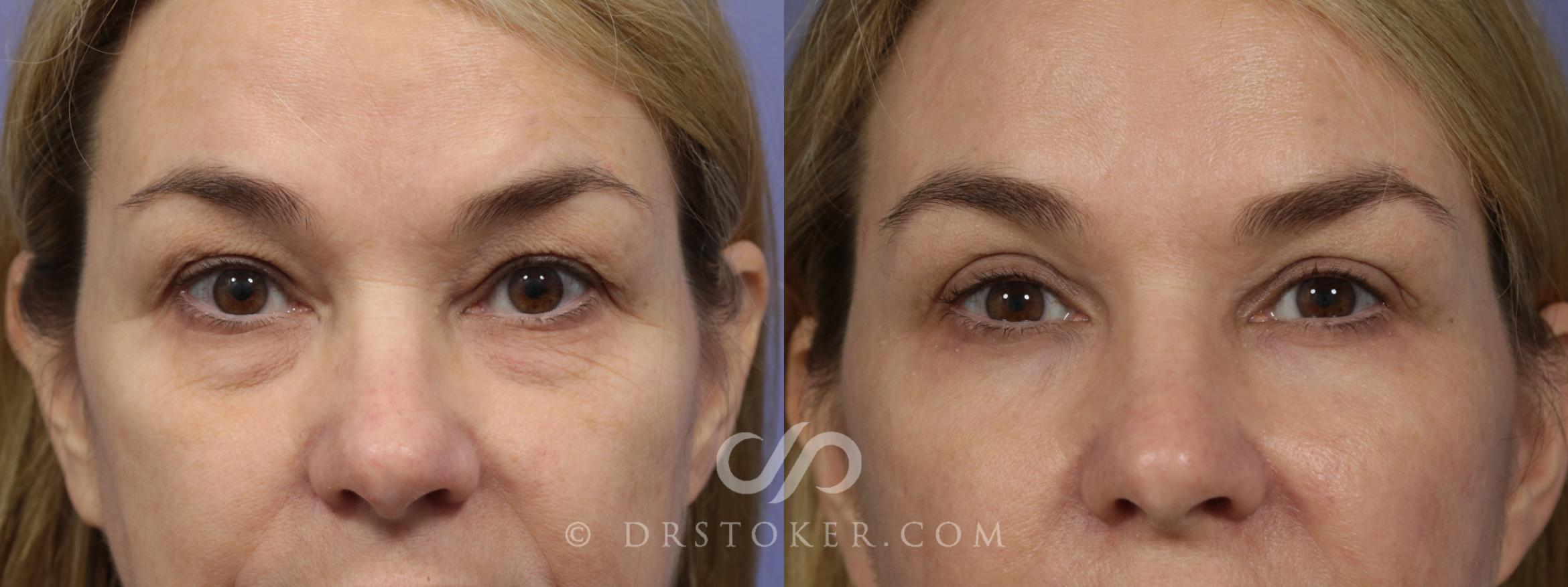 Eyelid Surgery Case 866 Before & After View #1 | Marina del Rey, CA | Dr. David Stoker
