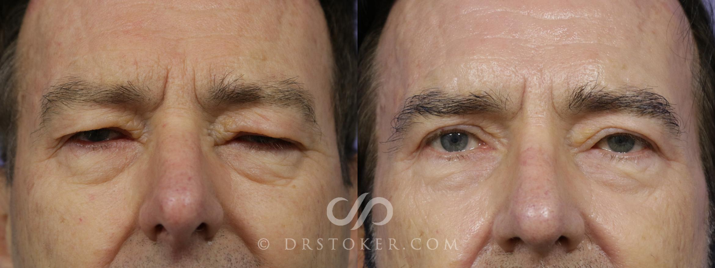Eyelid Surgery for Men Case 1474 Before & After View #1 | Marina del Rey, CA | Dr. David Stoker