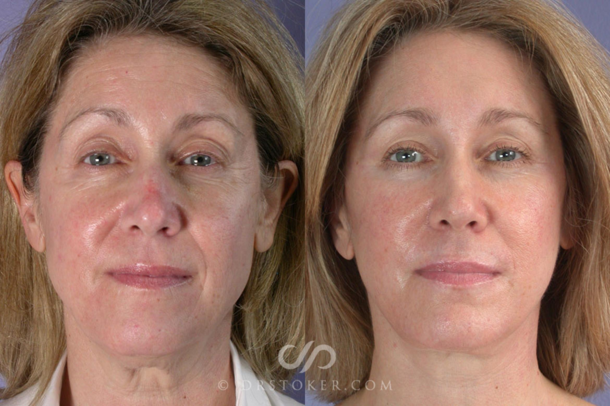 Brow Lift Case 257 Before & After View #1 | Los Angeles, CA | Dr. David Stoker