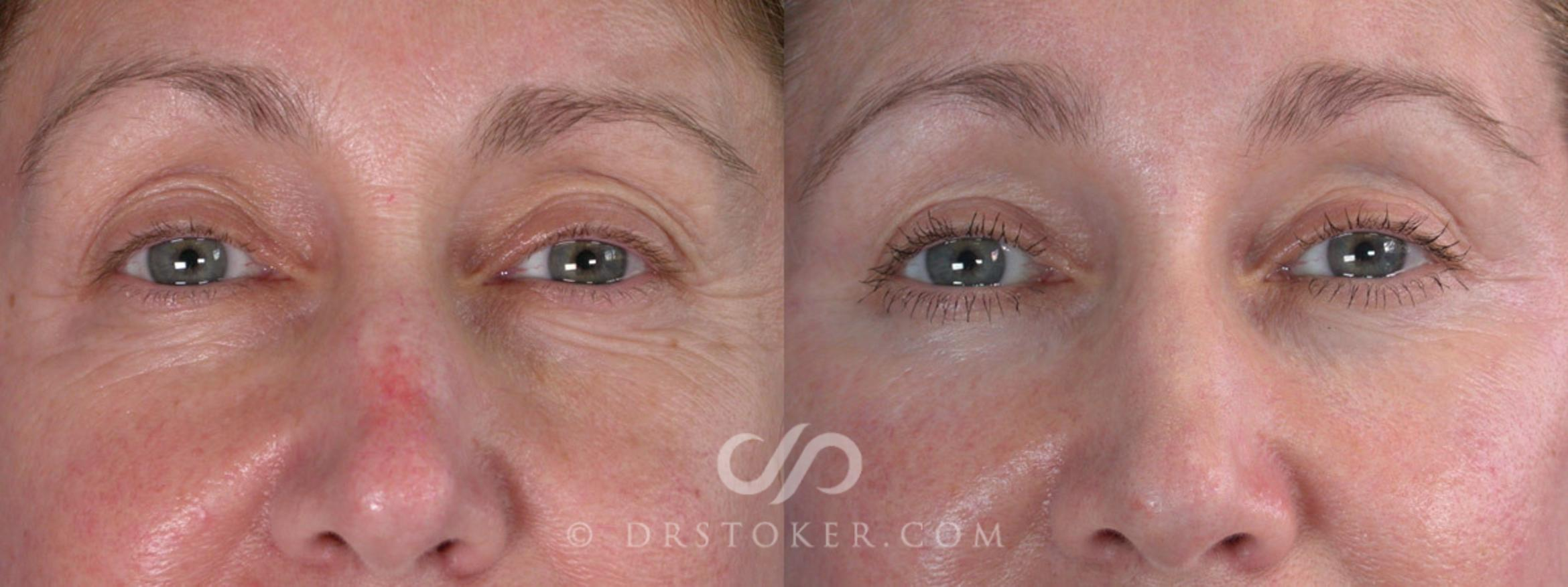 Brow Lift Case 257 Before & After View #5 | Los Angeles, CA | Dr. David Stoker