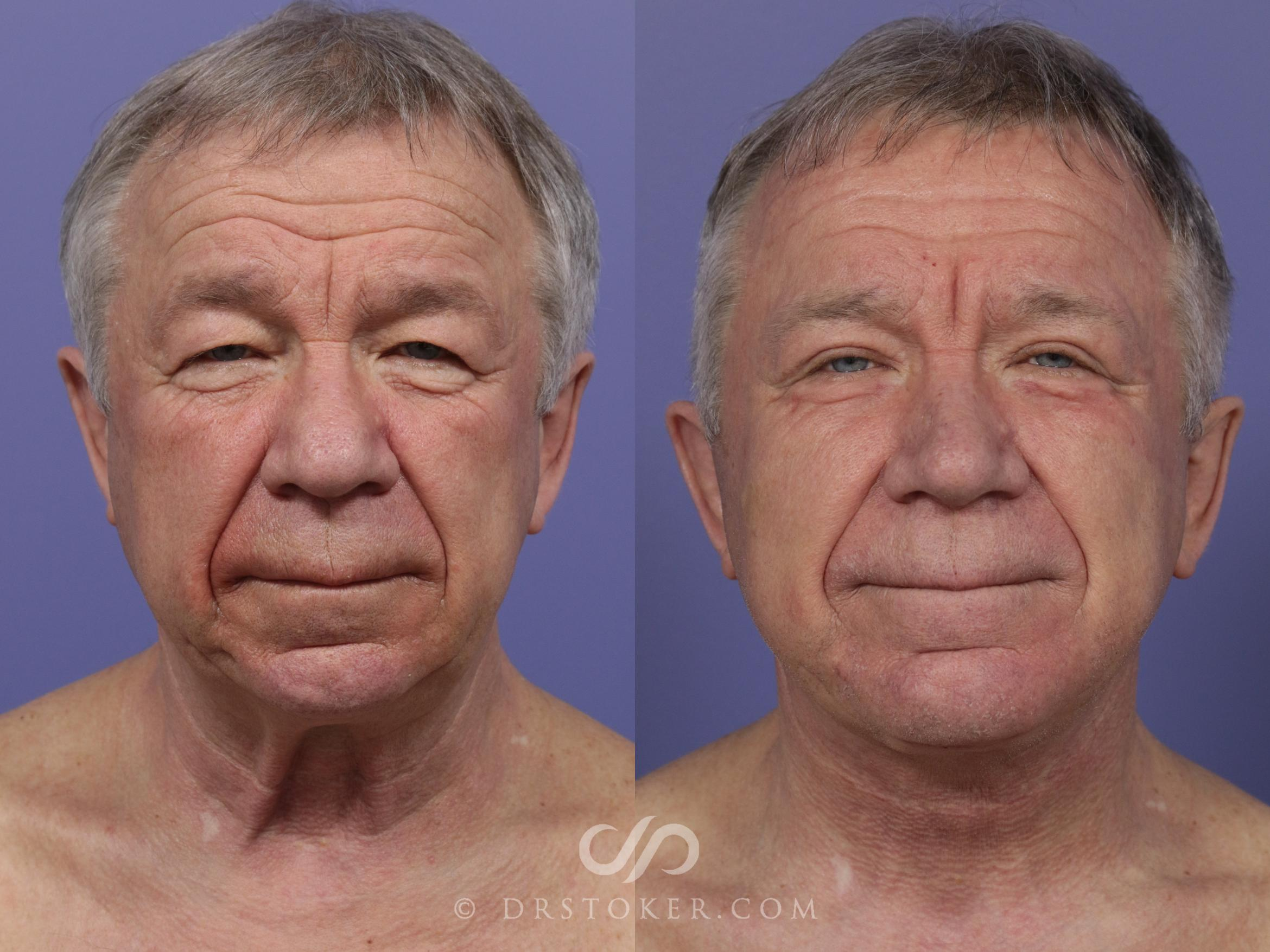 Facelift for Men Case 823 Before & After View #1 | Marina del Rey, CA | Dr. David Stoker