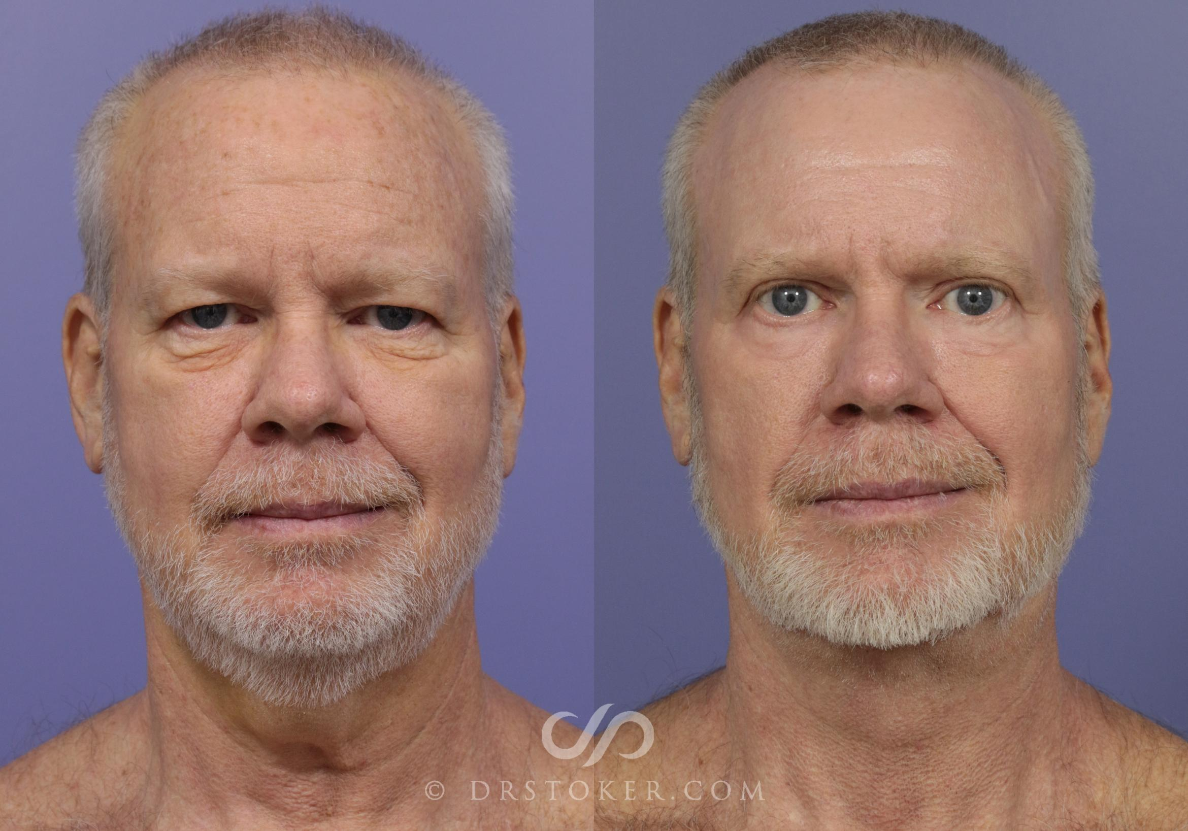Facelift for Men Case 833 Before & After View #1 | Marina del Rey, CA | Dr. David Stoker