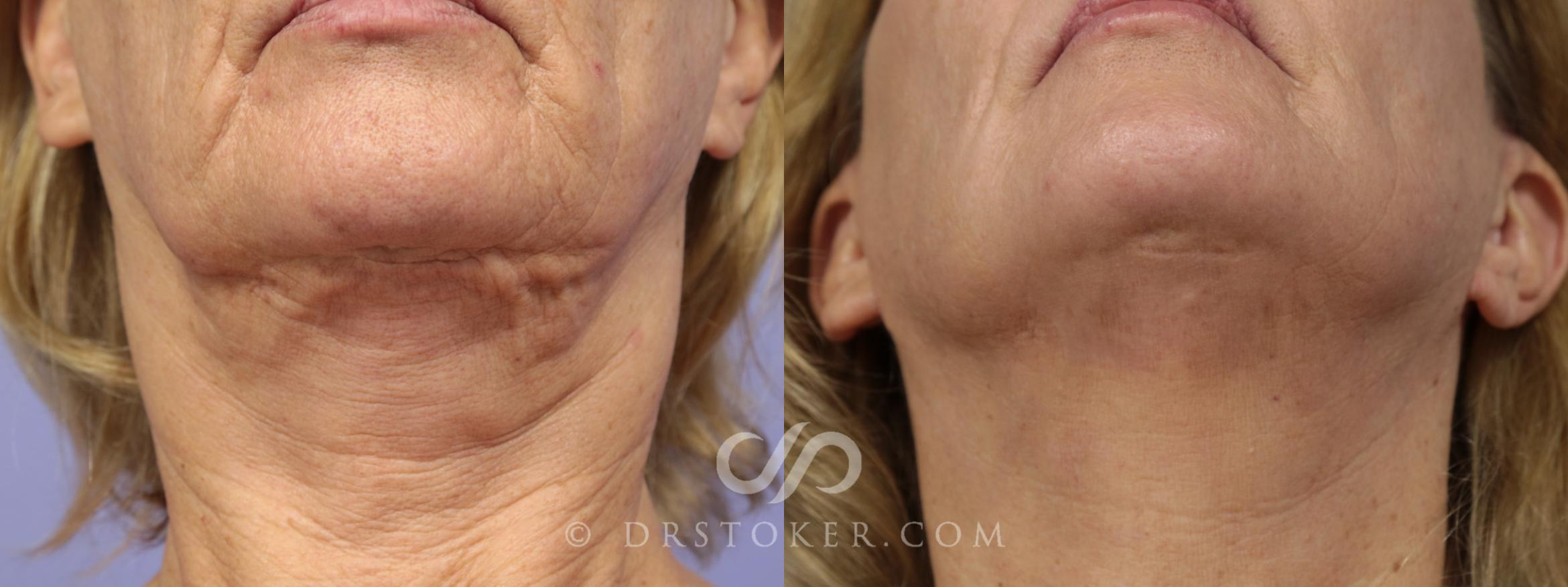 Facelift Incisions (Hidden Scars) Case 1433 Before & After View #1 | Marina del Rey, CA | Dr. David Stoker