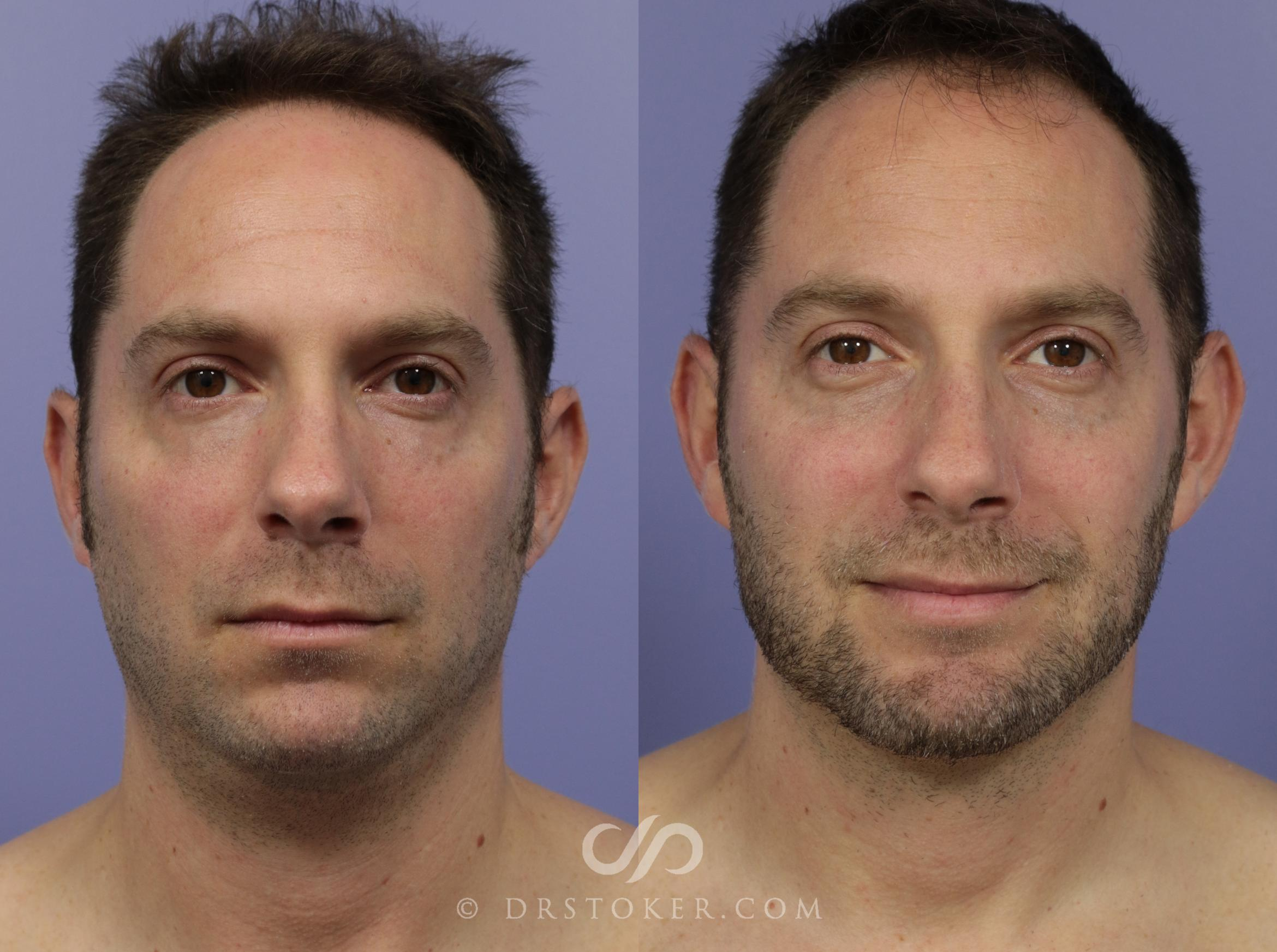 Chin Augmentation Case 1163 Before & After View #1 | Marina del Rey, CA | Dr. David Stoker