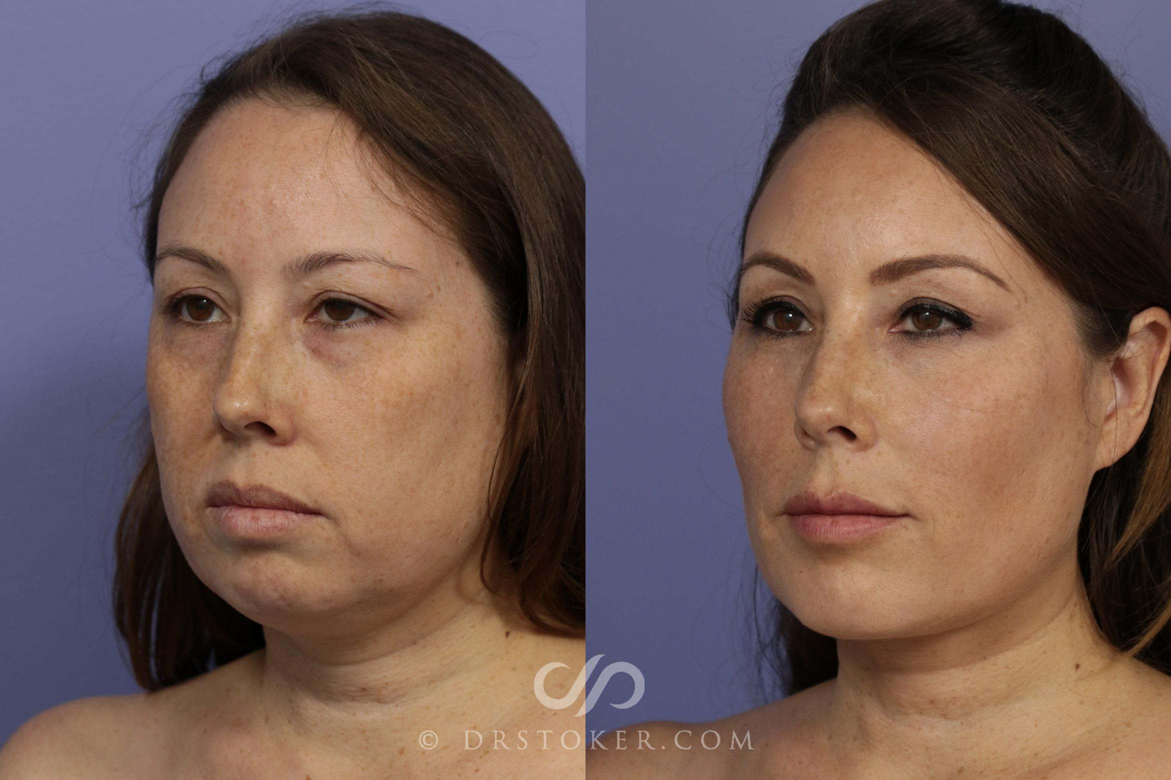 Filler- Cheeks Case 886 Before & After View #1 | Los Angeles, CA | Dr. David Stoker