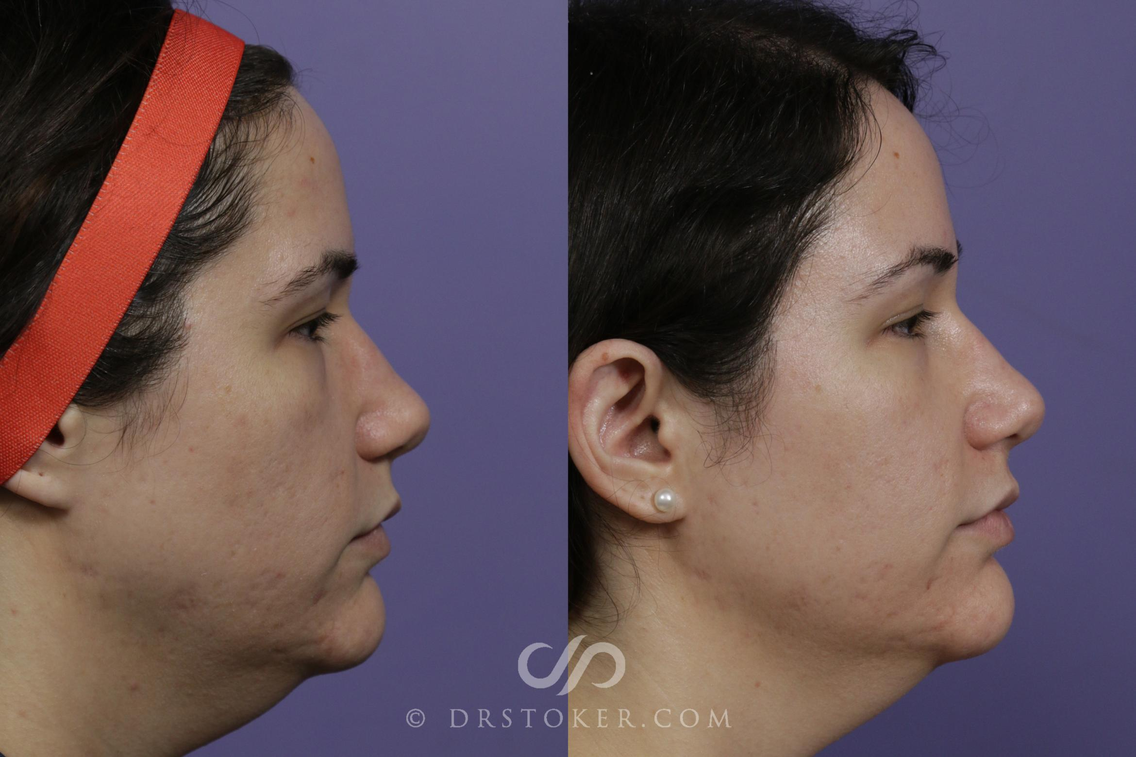 Filler- Jawline Case 1599 Before & After View #1 | Marina del Rey, CA | Dr. David Stoker