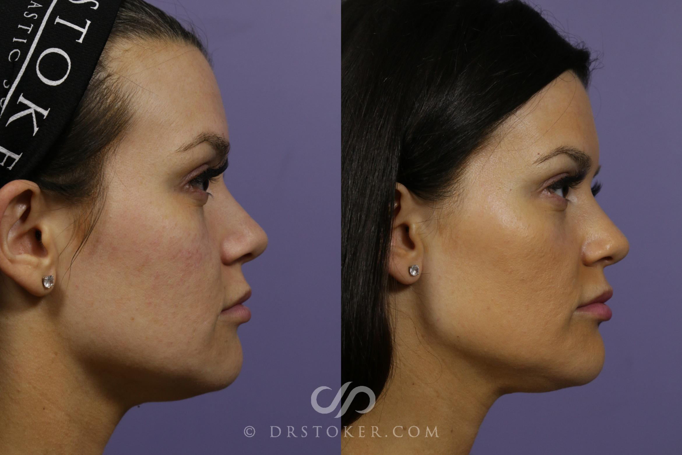 Filler- Jawline Case 1644 Before & After View #1 | Marina del Rey, CA | Dr. David Stoker