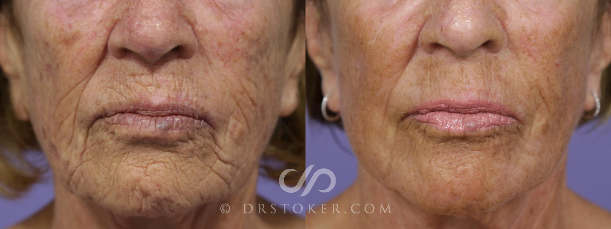 Laser Resurfacing Mouth Case 1533 Before & After View #1 | Marina del Rey, CA | Dr. David Stoker