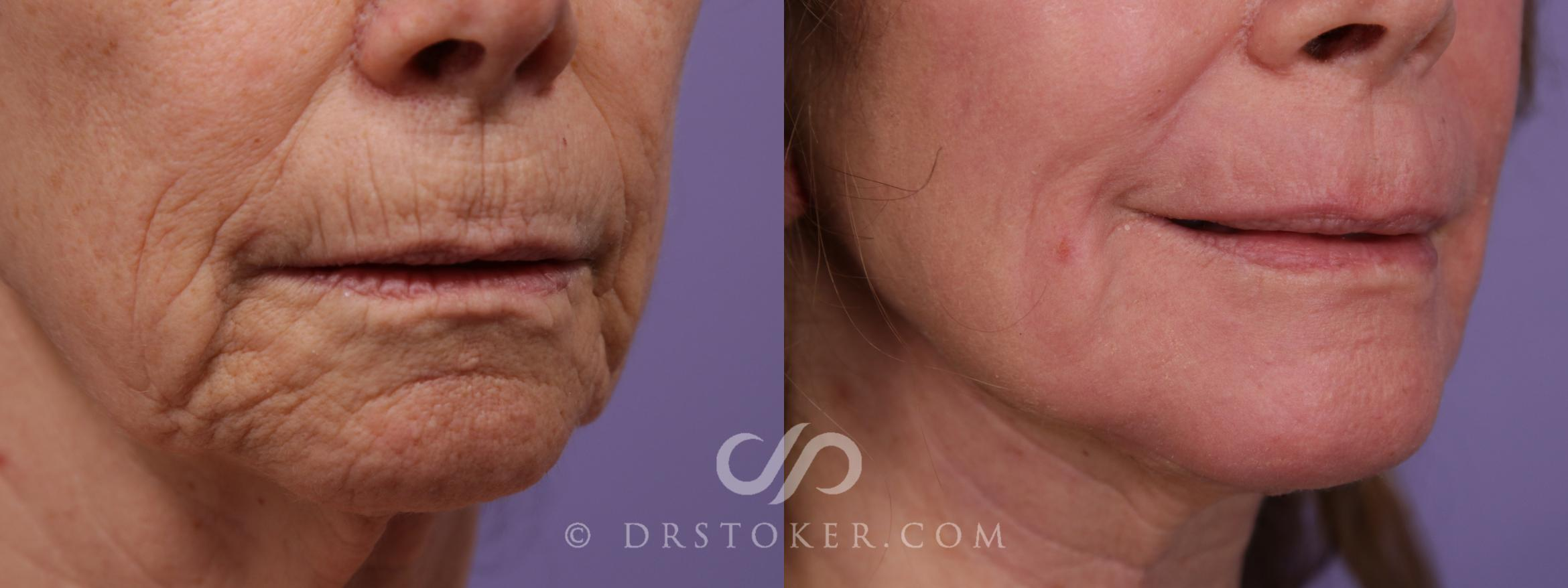 Laser Skin Resurfacing Case 1757 Before & After View #1 | Los Angeles, CA | Dr. David Stoker
