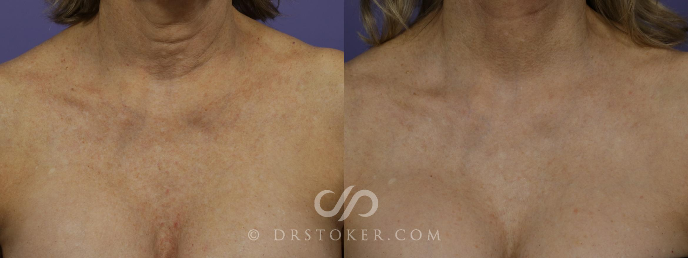 Laser Resurfacing Chest Case 1442 Before & After View #1 | Marina del Rey, CA | Dr. David Stoker