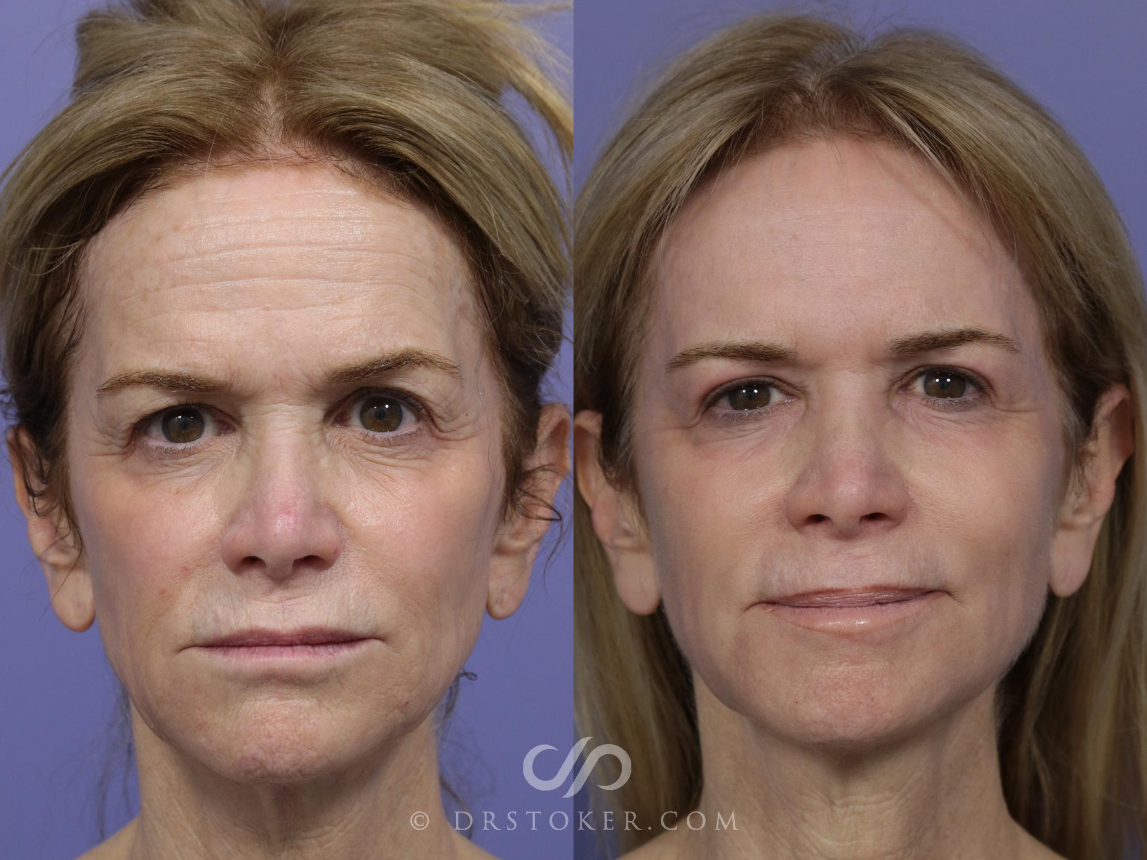 Laser Resurfacing  Case 896 Before & After View #1 | Marina del Rey, CA | Dr. David Stoker