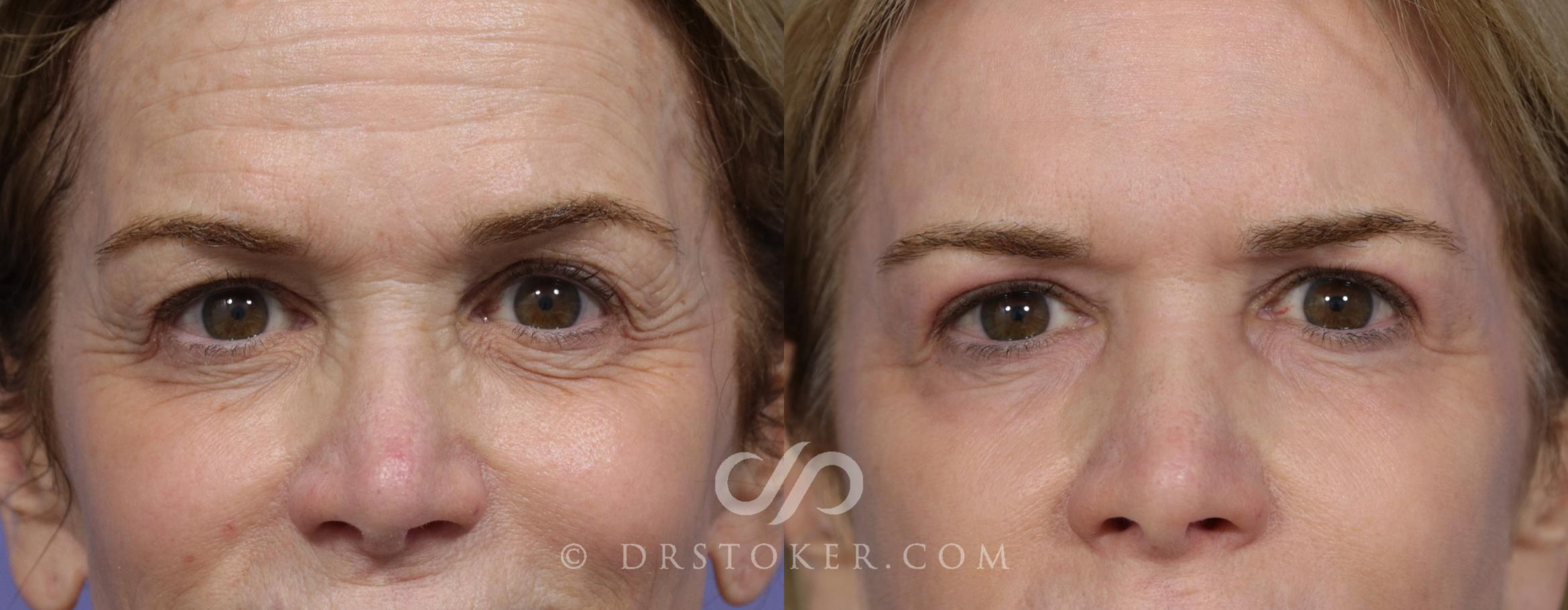Laser Resurfacing  Case 897 Before & After View #1 | Marina del Rey, CA | Dr. David Stoker