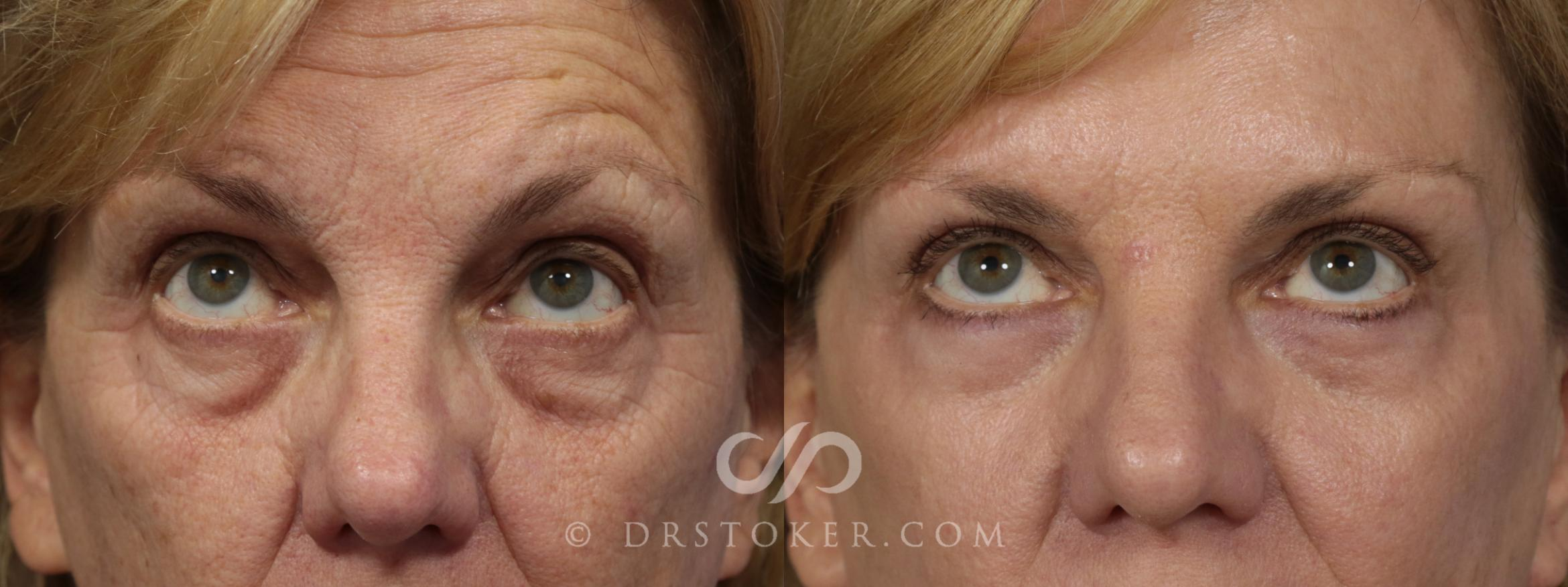 Laser Skin Resurfacing Case 923 Before & After View #1 | Los Angeles, CA | Dr. David Stoker