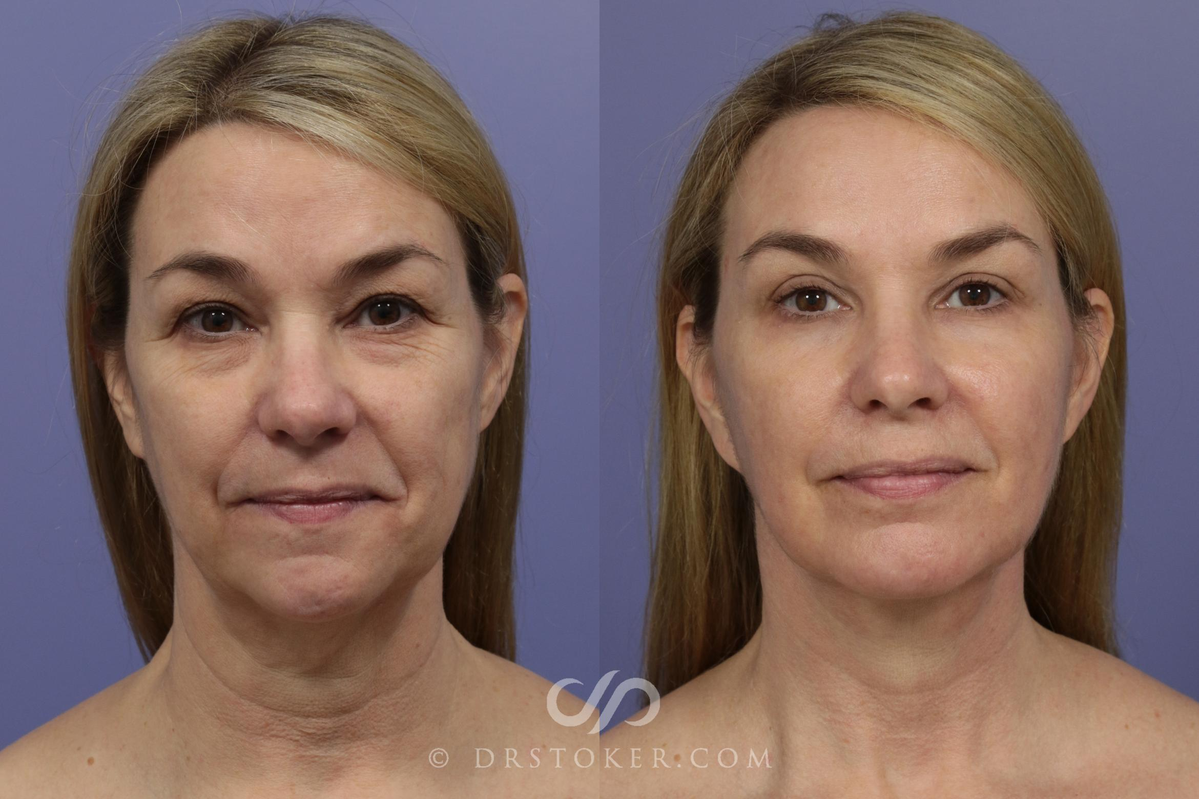 Laser Skin Resurfacing Case 930 Before & After View #1 | Marina del Rey, CA | Dr. David Stoker