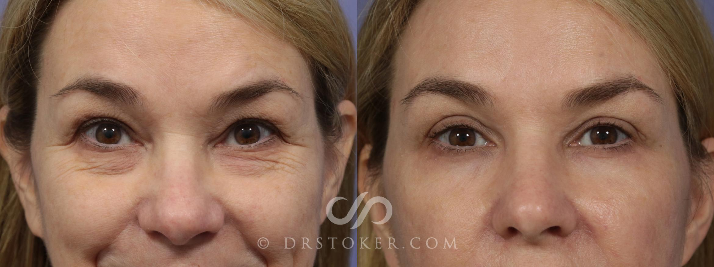 Laser Skin Resurfacing Case 931 Before & After View #1 | Marina del Rey, CA | Dr. David Stoker