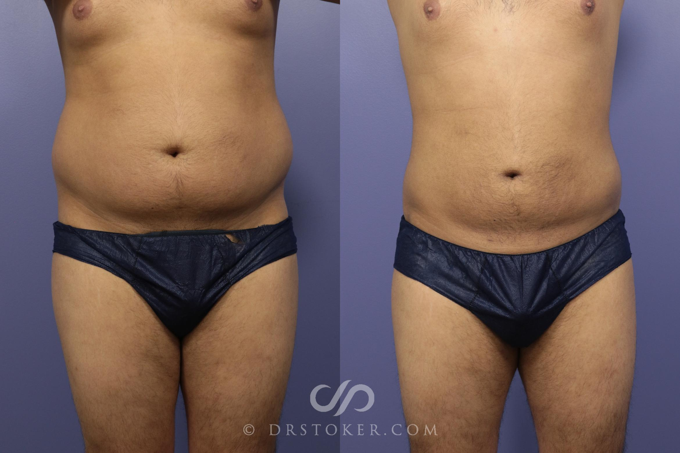 Liposuction Case 1086 Before & After View #1 | Los Angeles, CA | Dr. David Stoker