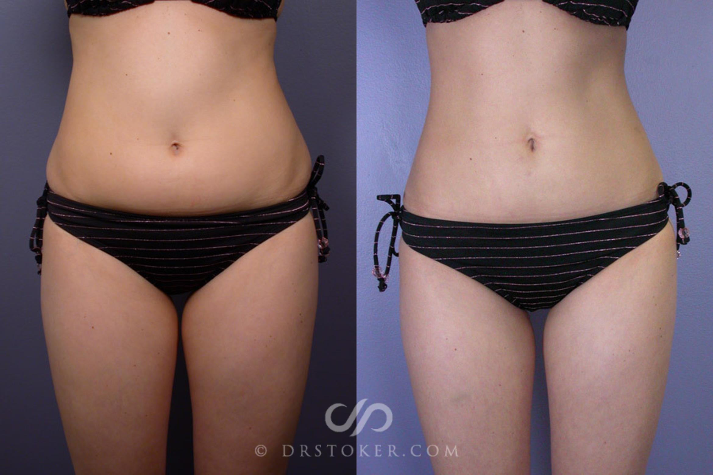 Liposuction Case 161 Before & After View #1 | Marina del Rey, CA | Dr. David Stoker