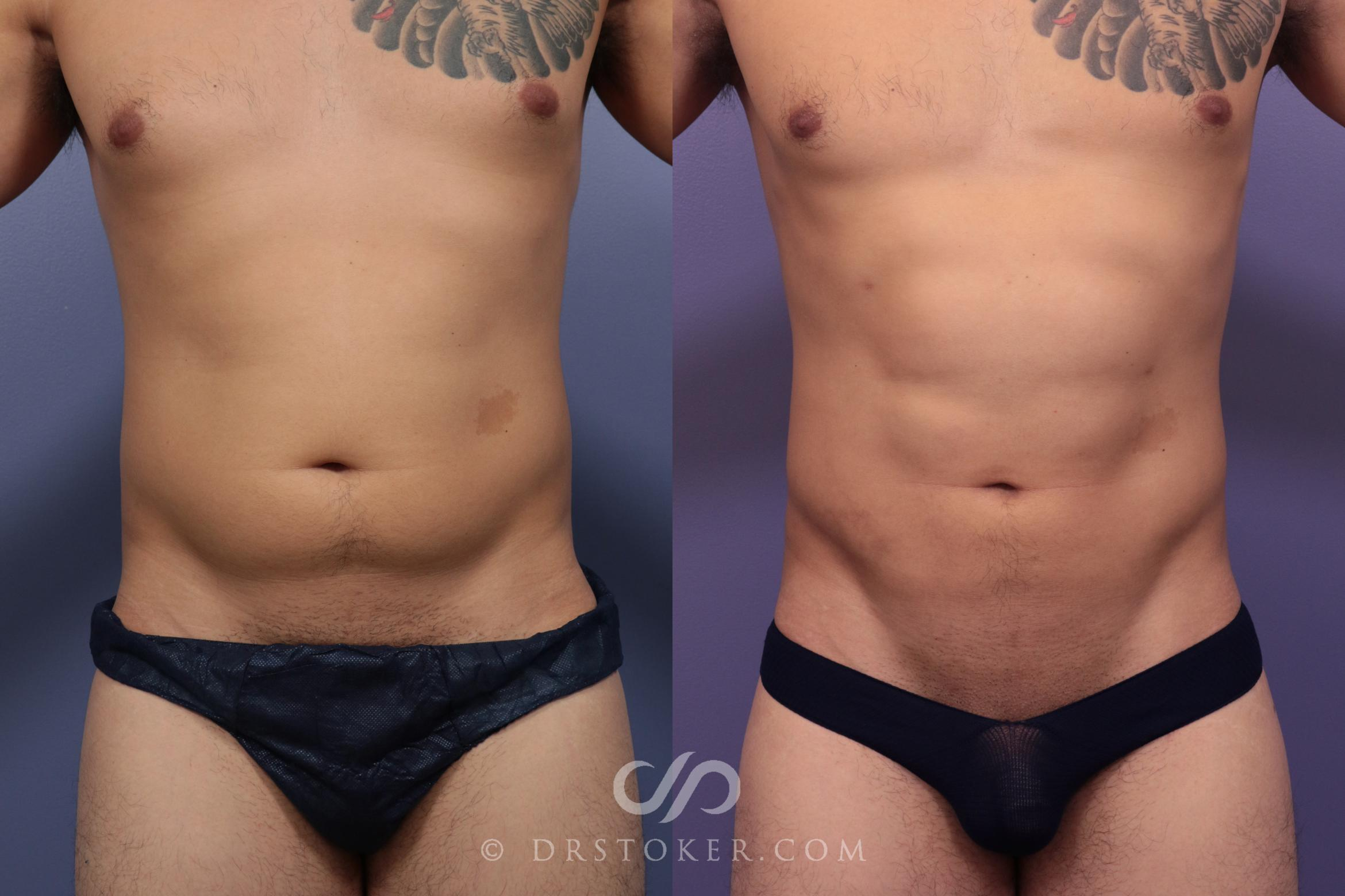 Liposuction - Abdominal Etching & Sculpting Case 984 Before & After View #1 | Marina del Rey, CA | Dr. David Stoker