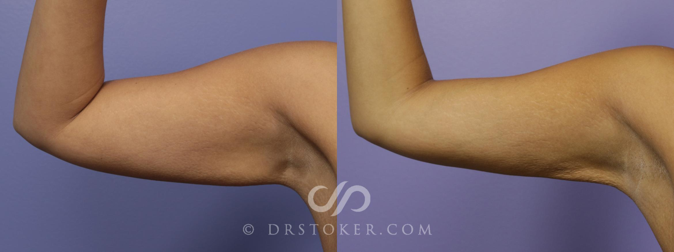 Liposuction - Axillary Fat Removal Case 1482 Before & After View #1 | Marina del Rey, CA | Dr. David Stoker