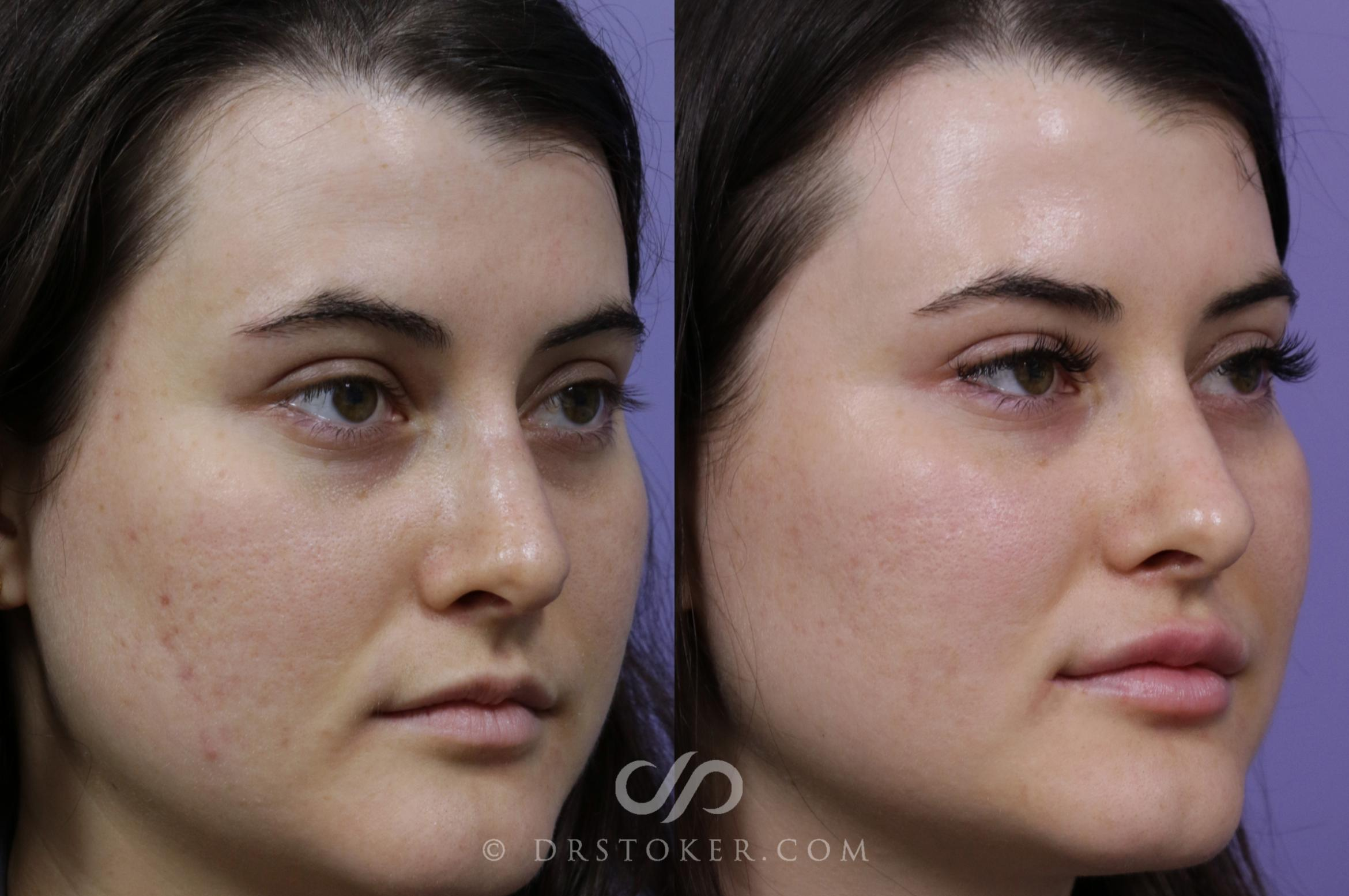 Prejuvenation (Nonsurgical) Case 1588 Before & After View #1 | Marina del Rey, CA | Dr. David Stoker