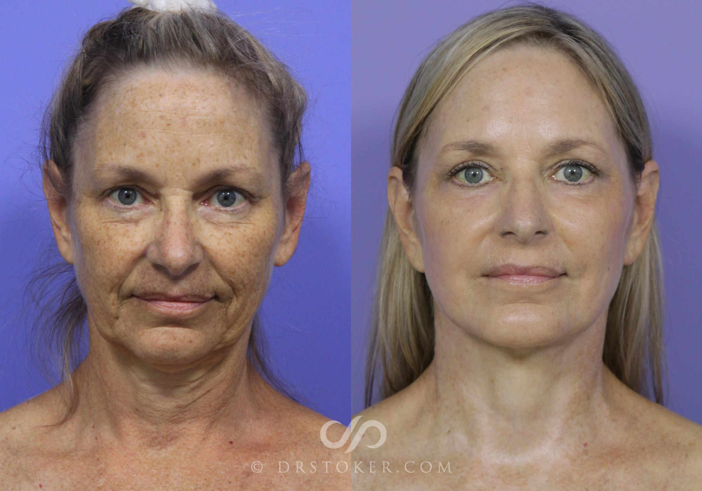 Necklift Case 1231 Before & After View #1 | Los Angeles, CA | Dr. David Stoker