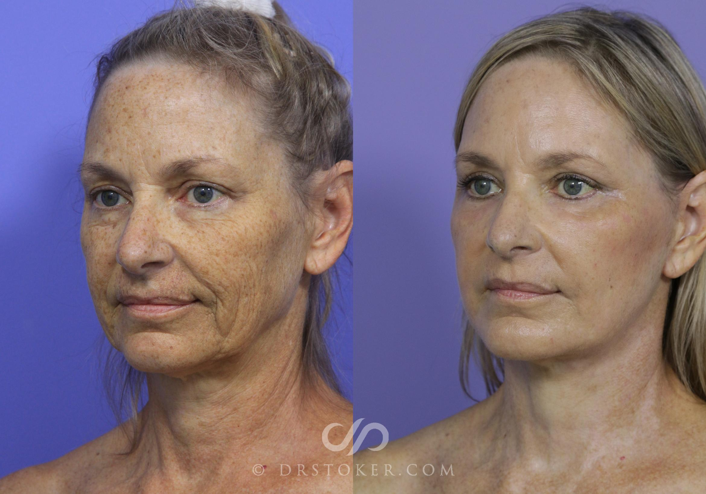 Necklift Case 806 Before & After View #1 | Marina del Rey, CA | Dr. David Stoker