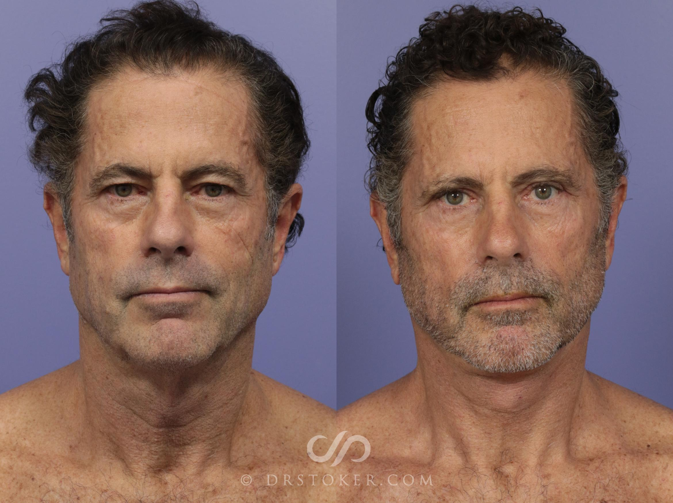 Necklift Case 813 Before & After View #1 | Marina del Rey, CA | Dr. David Stoker