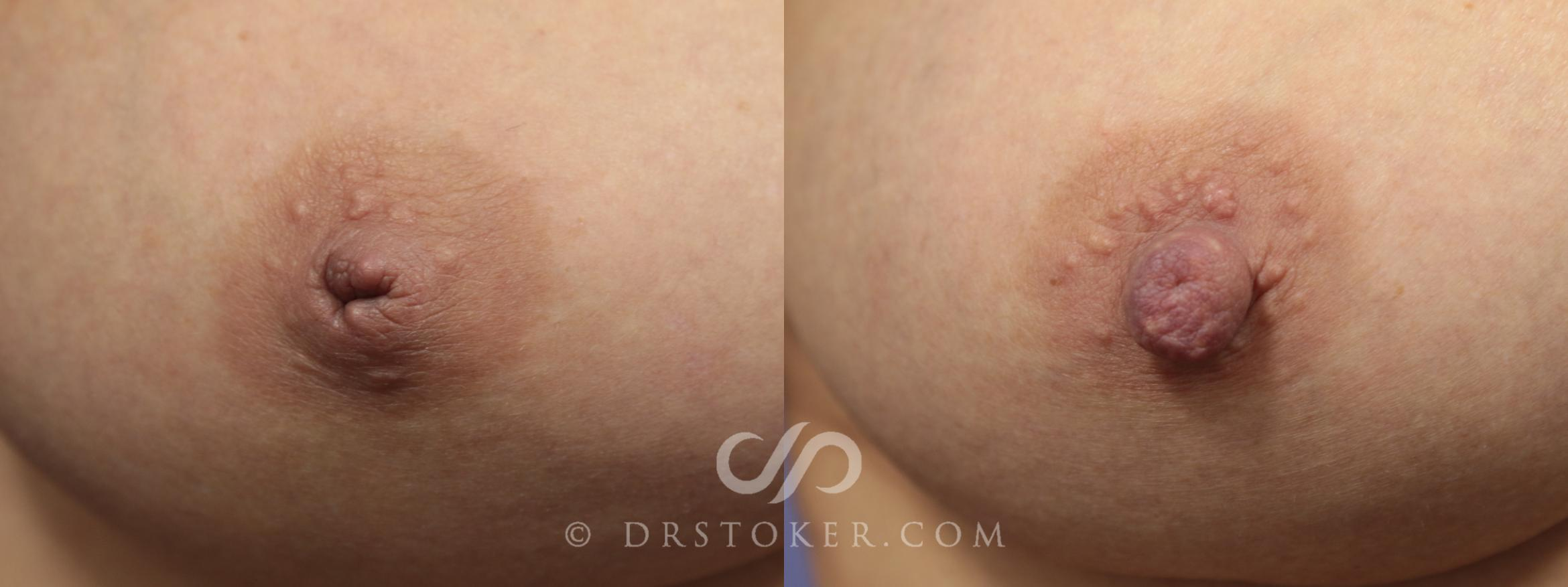 Nipple - Inversion Correction Case 756 Before & After View #1 | Marina del Rey, CA | Dr. David Stoker