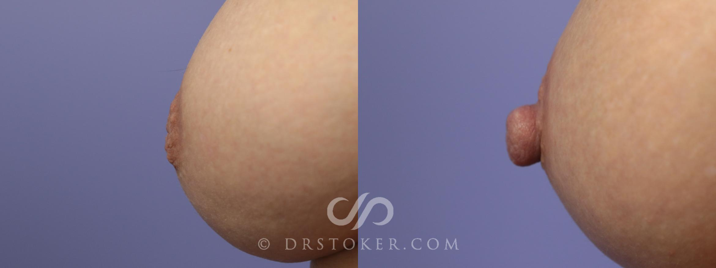 Nipple - Inversion Correction Case 757 Before & After View #1 | Marina del Rey, CA | Dr. David Stoker