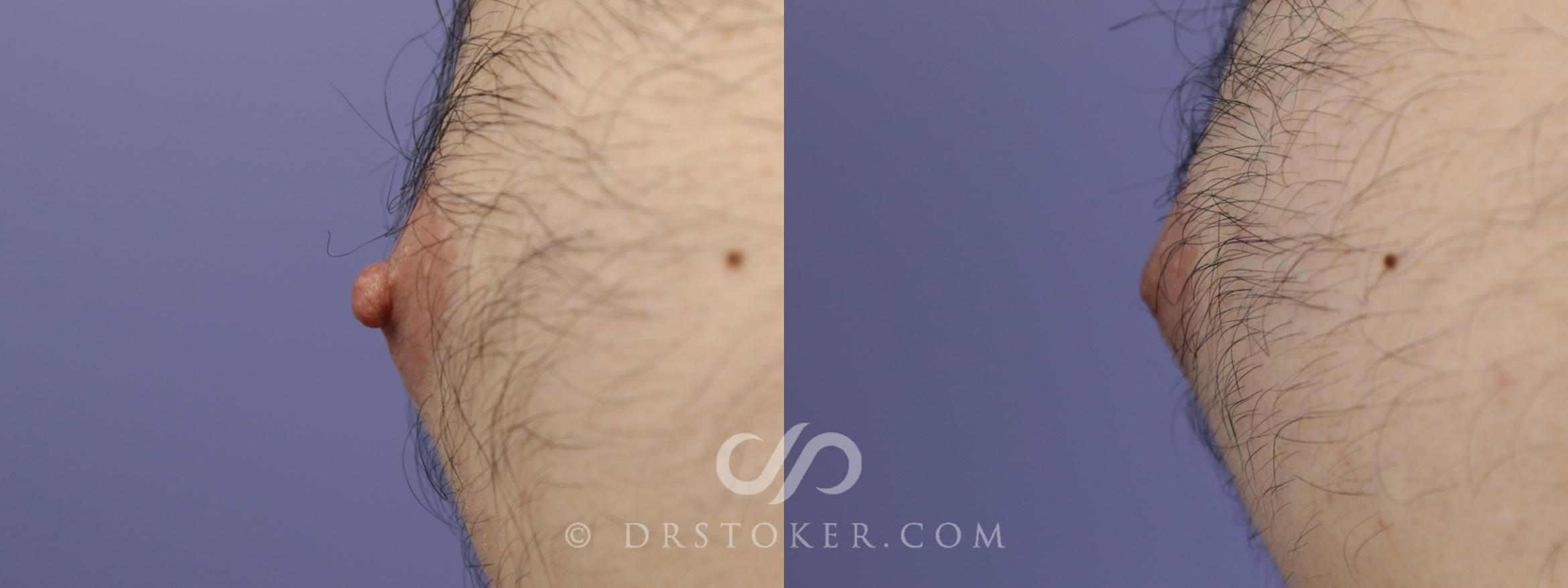 Nipple Reduction Case 1229 Before & After View #1 | Marina del Rey, CA | Dr. David Stoker