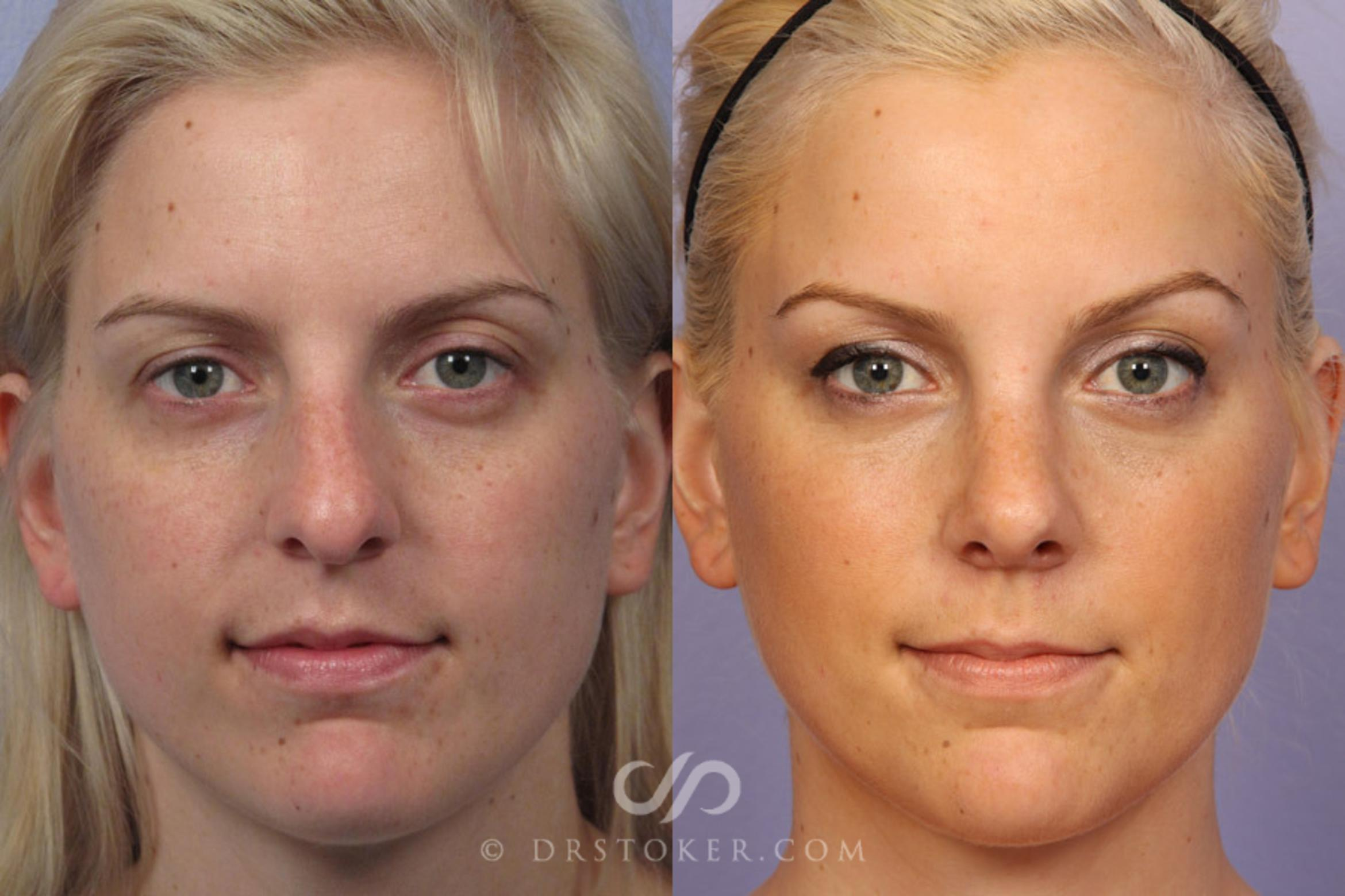 Nose Reshaping Case 306 Before & After View #1 | Marina del Rey, CA | Dr. David Stoker