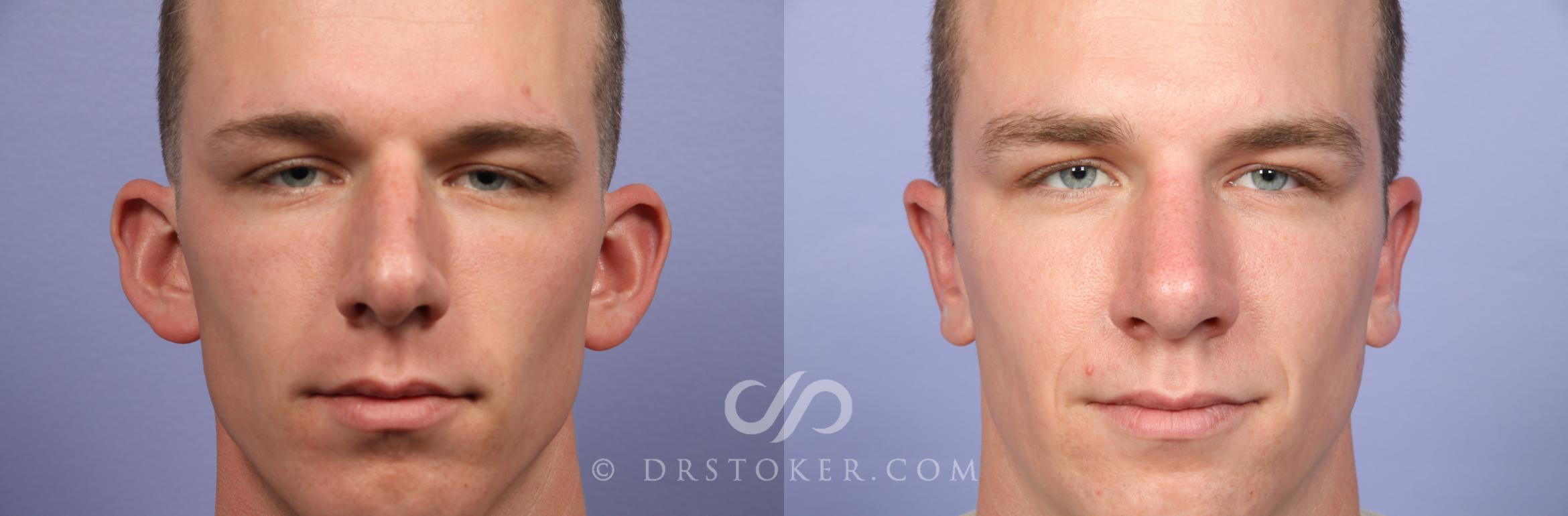 Nose Reshaping Case 417 Before & After View #1 | Marina del Rey, CA | Dr. David Stoker