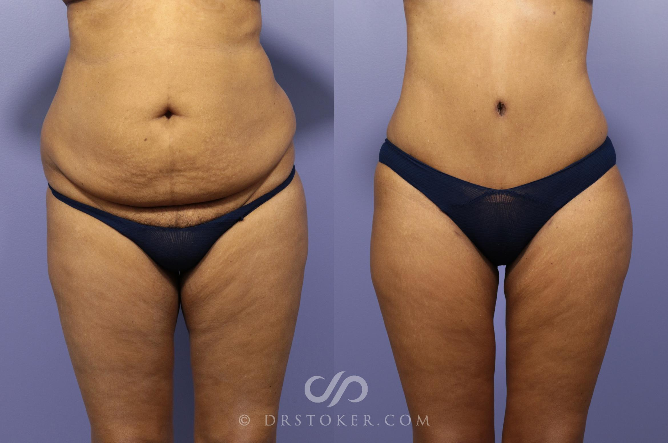 Tummy Tuck Case 1180 Before & After View #1 | Marina del Rey, CA | Dr. David Stoker