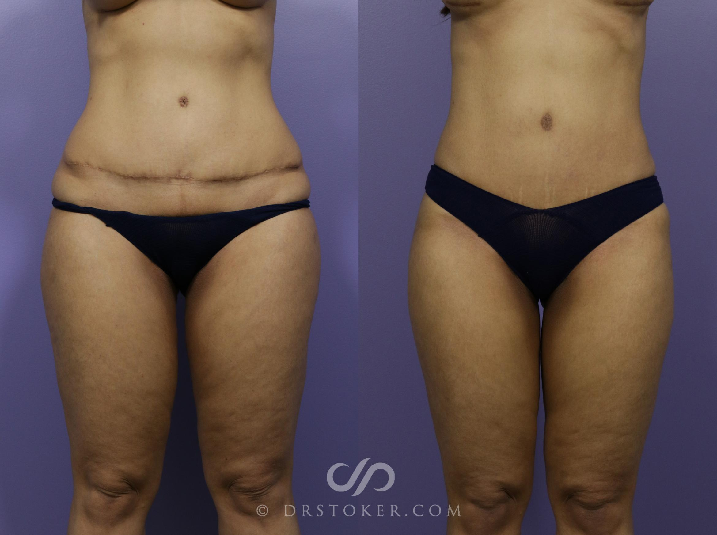 Tummy Tuck Case 1186 Before & After View #1 | Marina del Rey, CA | Dr. David Stoker